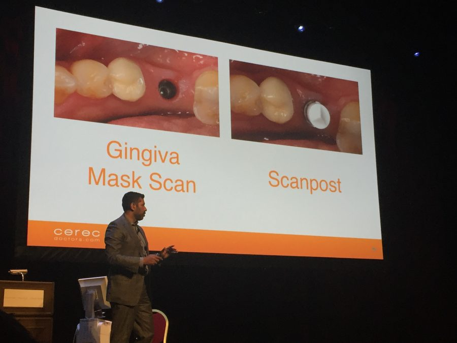 presentation showing a slide of gingiva mask scan and scan post